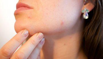 Ako si zvýšiť sebavedomie pri problémoch s akné